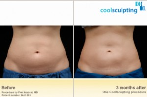 cool sculpting, coolsculpting, Krauss Dermatology